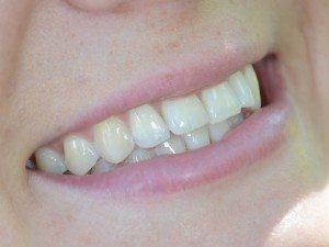 Krista Medina's Smile Up Close