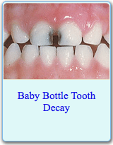 American Dental Association Brochure on Baby Bottle Tooth Decay