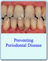 American Dental Association Brochure on Preventing Periodontal Disease
