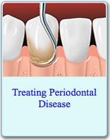 American Dental Association Brochure on Treating Periodontal Disease