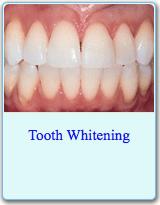 American Dental Association Brochure on Tooth Whitening