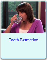 American Dental Association Brochure on Tooth Extractions