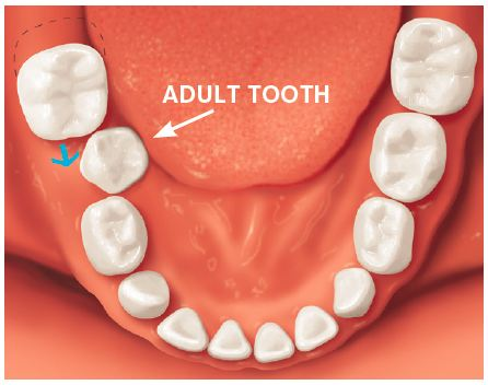 If a baby tooth is lost too early, the teeth beside it may drift into the empty space.