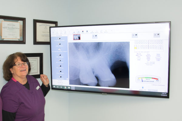 Nellie Clark with Seasons of Smiles Dental reviewing digital x-rays.
