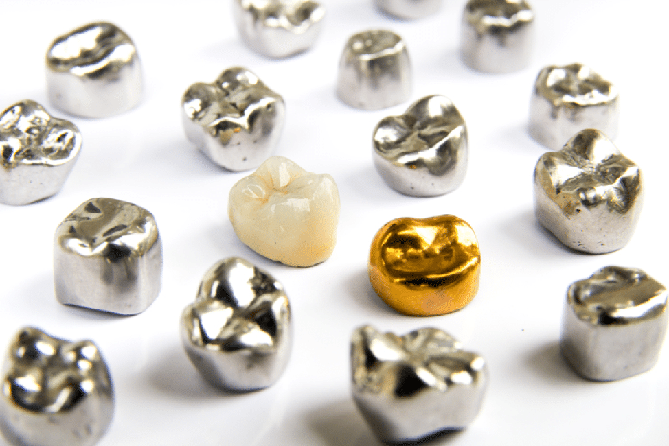 BuildMyContent: 3 Benefits of Dental Crowns