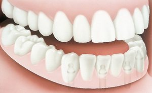 Implant Dentures After - PatientSmart