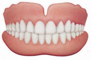 Conventional Complete Dentures - PatientSmart