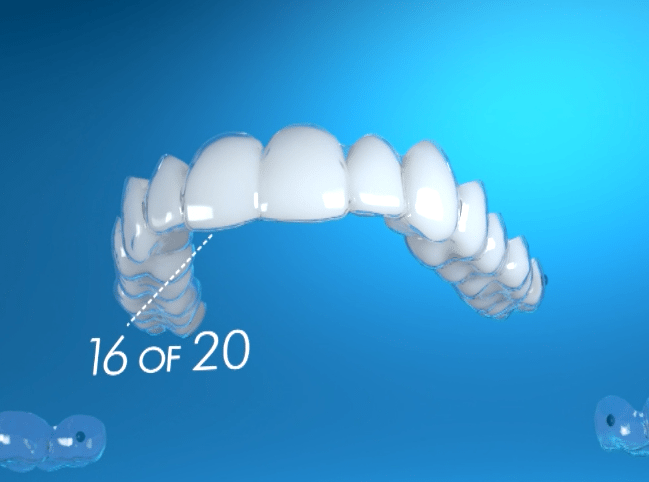 How do Invisalign Aligners Work