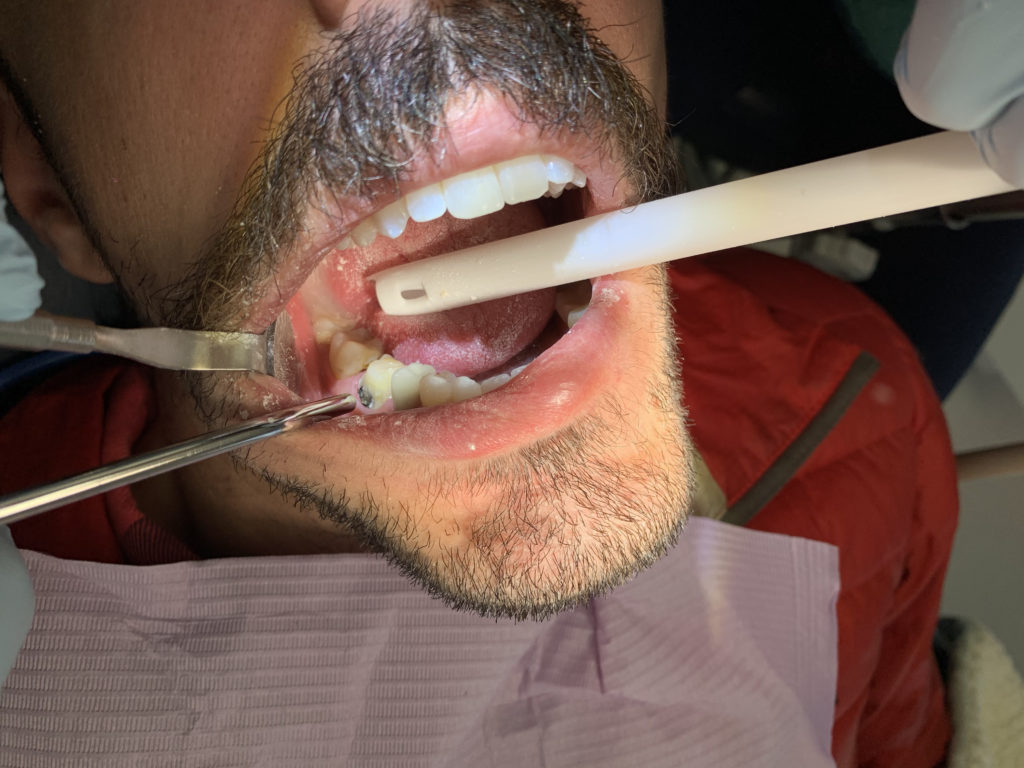 Jason's tooth #30.