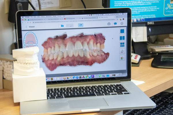 Dentistry is changing, alginate models are on their way out, STL files are the new and improved way.