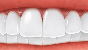 Missing tooth replaced by a dental implant