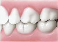 Crack widens when teeth bite down - Cracked Tooth - PatientSmart