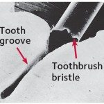 Even a toothbrush bristle is too big to reach inside a groove in the tooth (magnified).