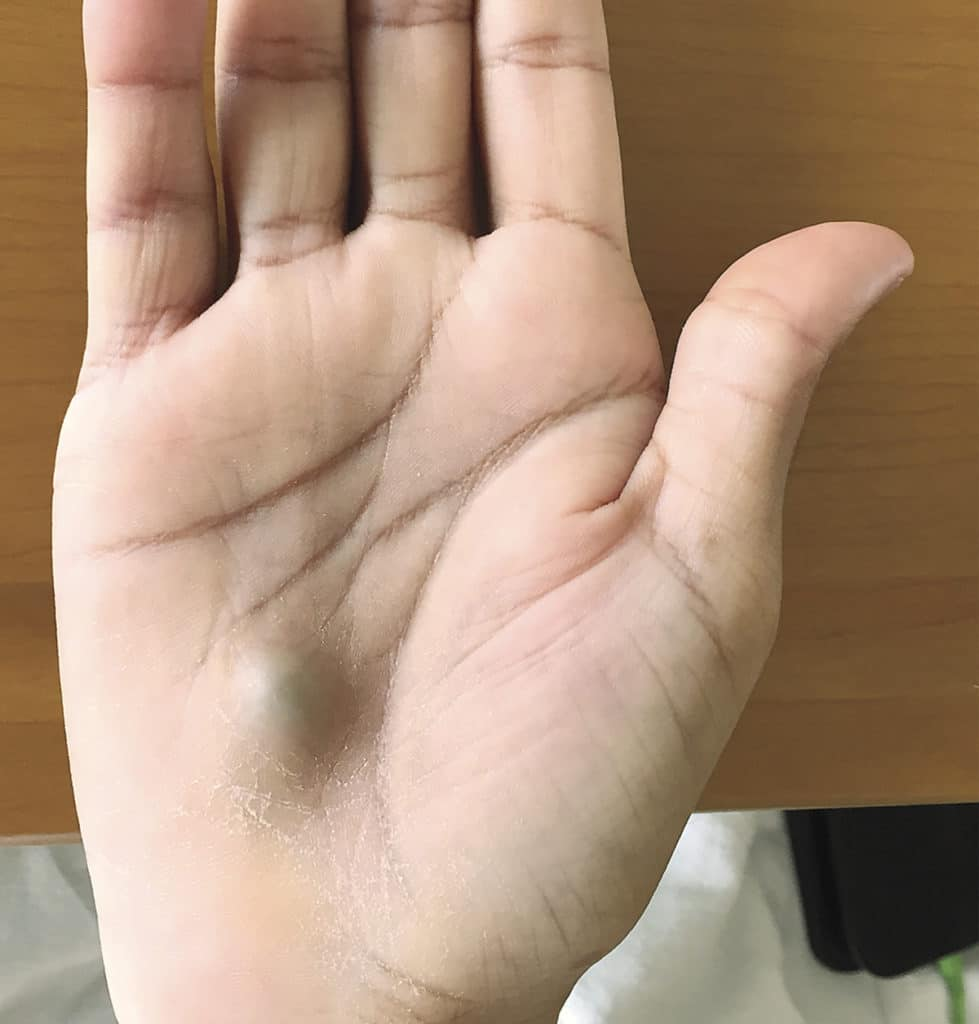 An infected hand caused from a routine dental visit?